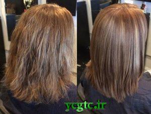 درمان ریزش مو - احیا موهای آسیبب دیده