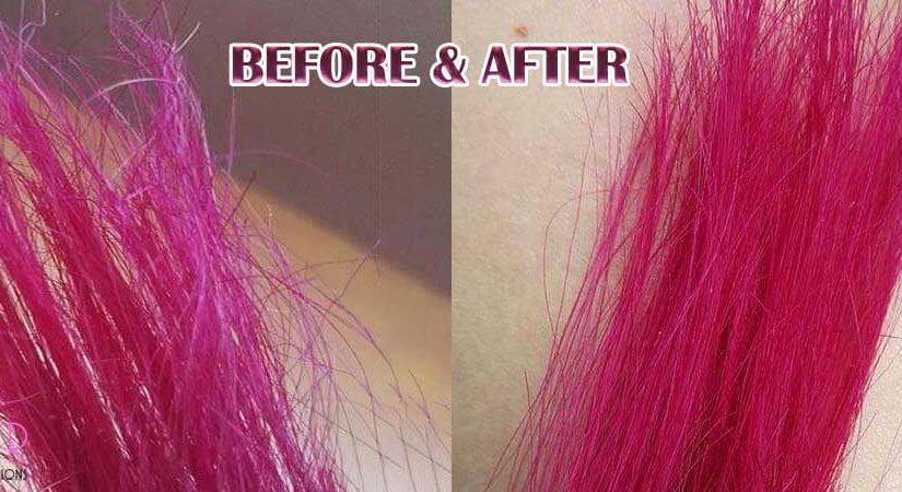 موتراپی یا احیا موهای آسیب دیده
